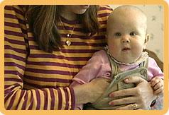 vauvalla kuumetta rokotuksen jälkeen